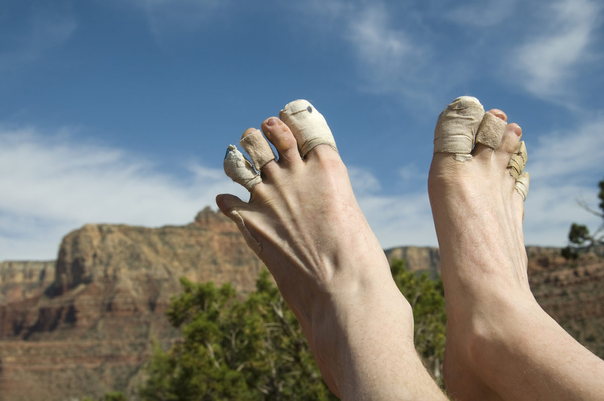 A hiker showing off his blistered and bandaged toes against a Grand Canyon backdrop.